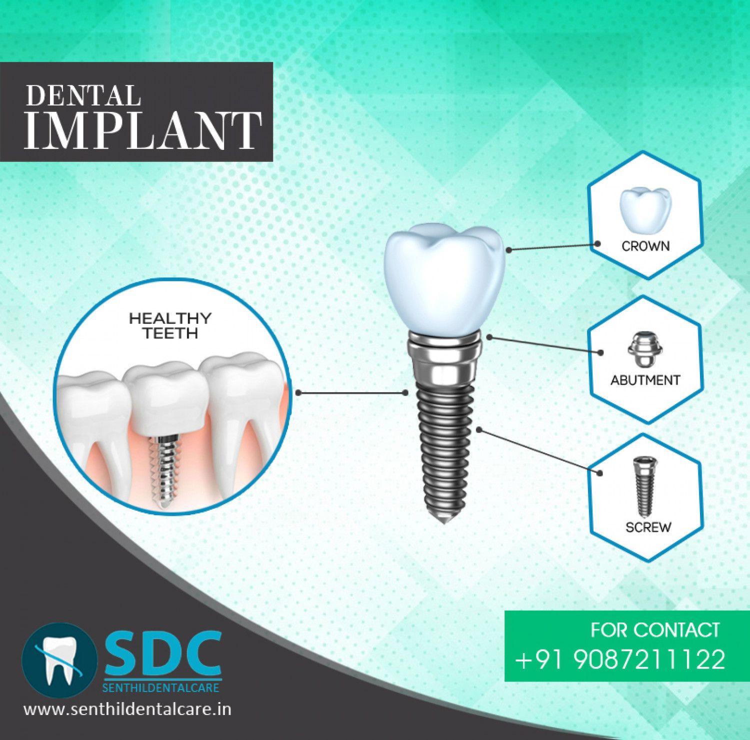 Best dental implants clinic services tooth implants cost
