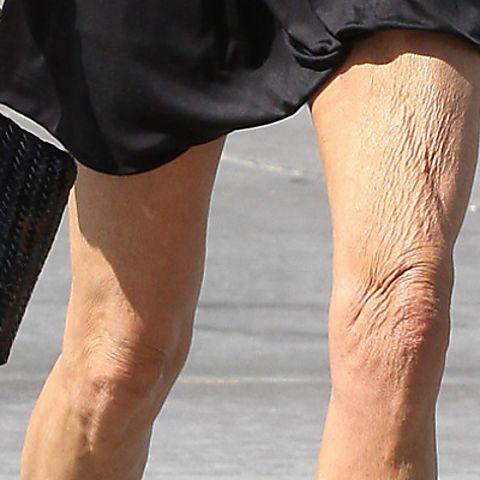 How To Repair Crepey Skin The Essential Diy Guide Crepey Skin Creepy Skin Crepy Skin