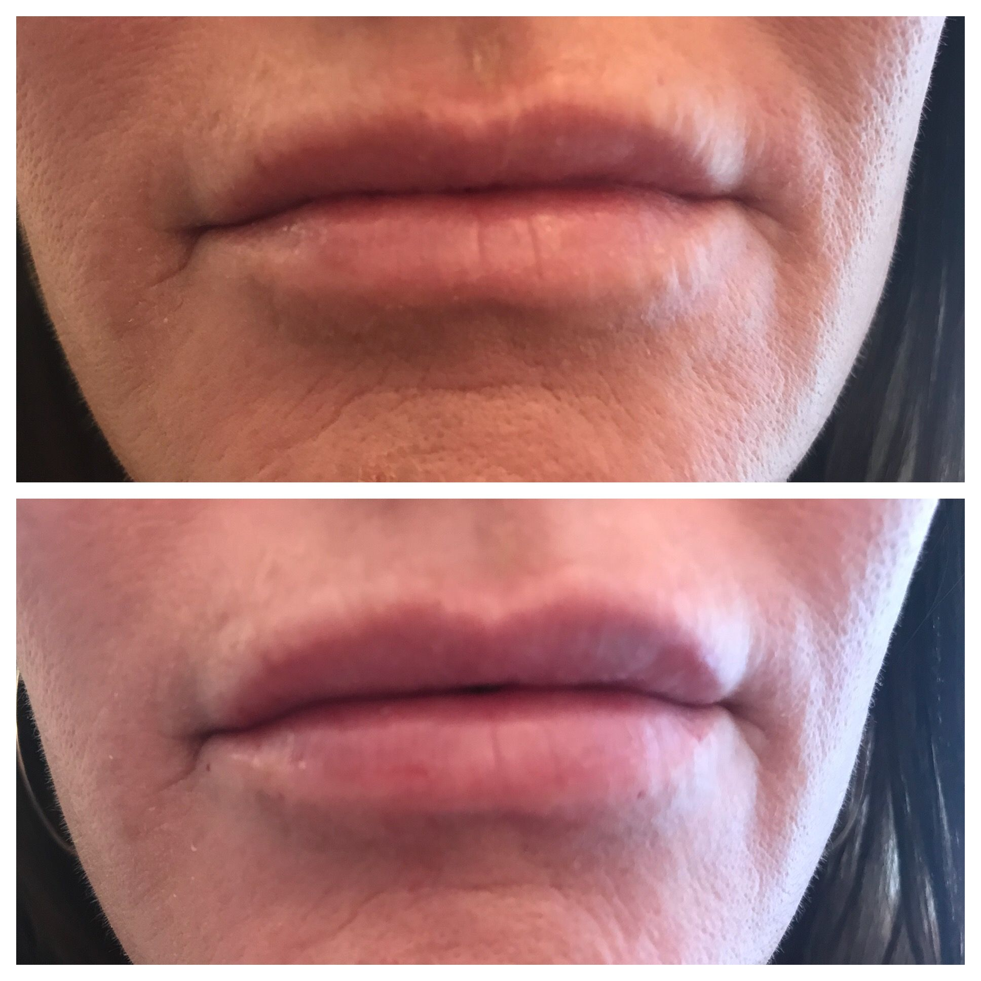 Lips touched up with #Restylane #Refyne  You look best when