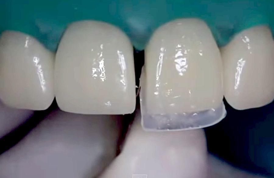 diastema-dental