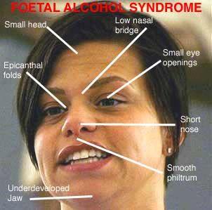 Diagnosis/Characteristics of FAS:Fetal Alcohol Syndrome | Settings ...