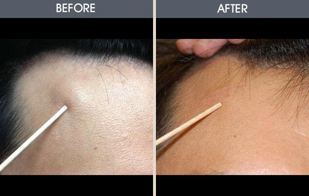 17 Best Lipoma Removal Without Surgery images in 2019