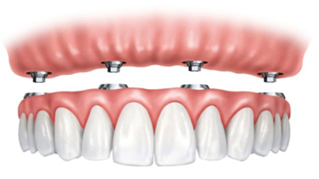 Cheap Dental Implant and #Implant #Fixed #Denture by Precision Dental Care & Implant Centre