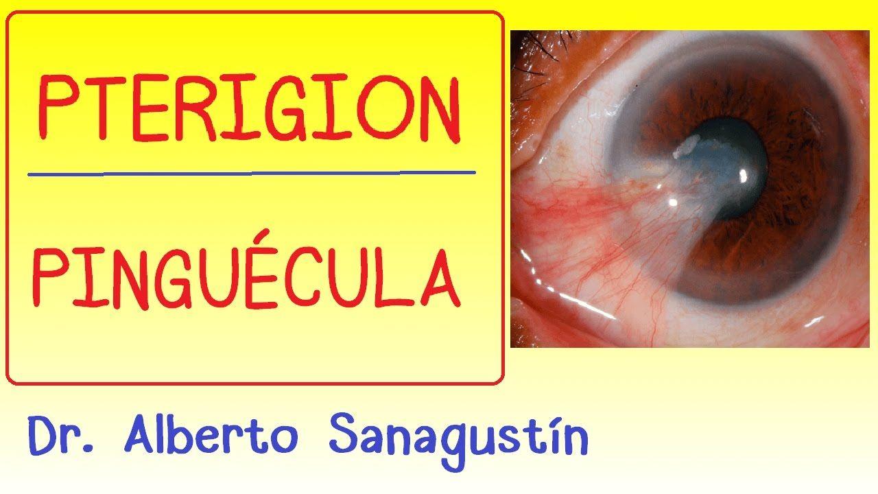Pterigion y pinguecula: síntomas, causas y tratamiento #oftalmología