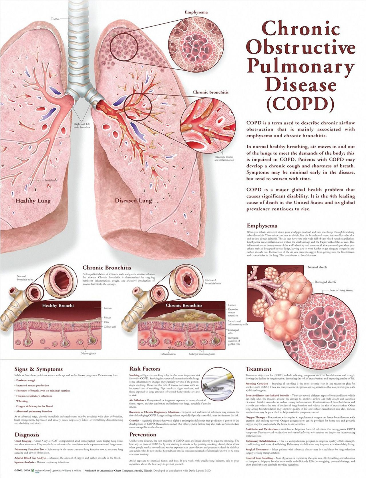 Chronic Obstructive Pulmonary Disease (COPD) Chart   FNP   Pinterest ...