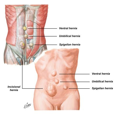 This hernia is in the navel (belly button), and is either congenital ...