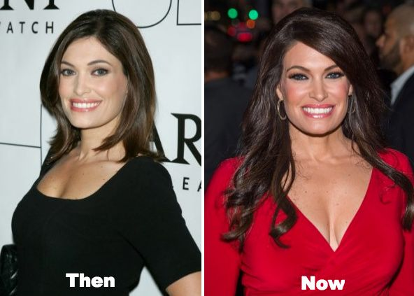 Kimberly Guilfoyle Plastic Surgery Before And After Photos