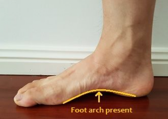 39+ Can you fix fallen arches trends