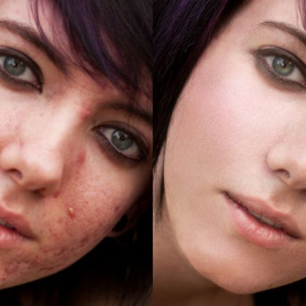 Get Rid Of Pimples - acne #acne #howtogetridofpimples #