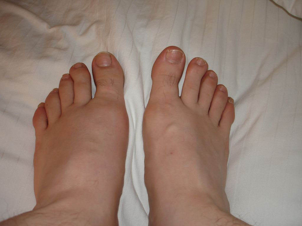 bb49e7052bbcbf95186e0bd5e03fdb39 - How To Get Rid Of Swollen Toes In Winter