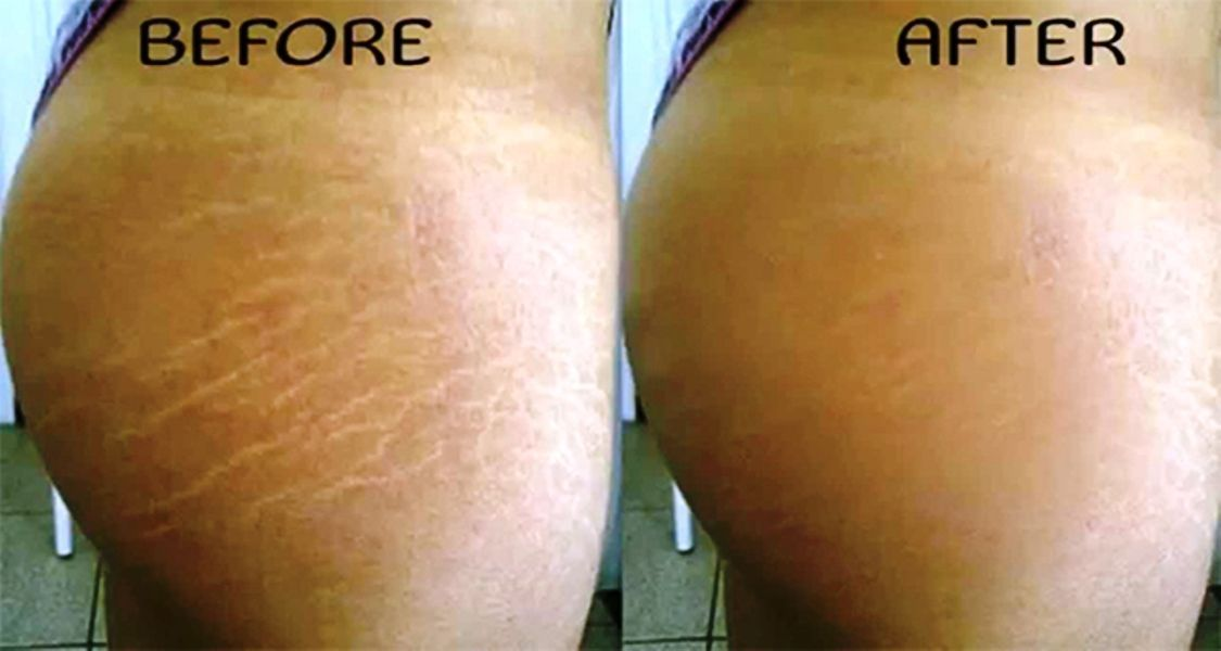 Tips And Tricks For Healthy Youthful Skin Stretch Marks Bio Oil