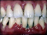 Gum disease, one of the most common diseases of adulthood, is the second most common cause of tooth loss, after tooth decay.