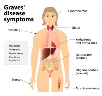 Graves' Disease : Causes, Symptoms and Treatments - Medical News Today
