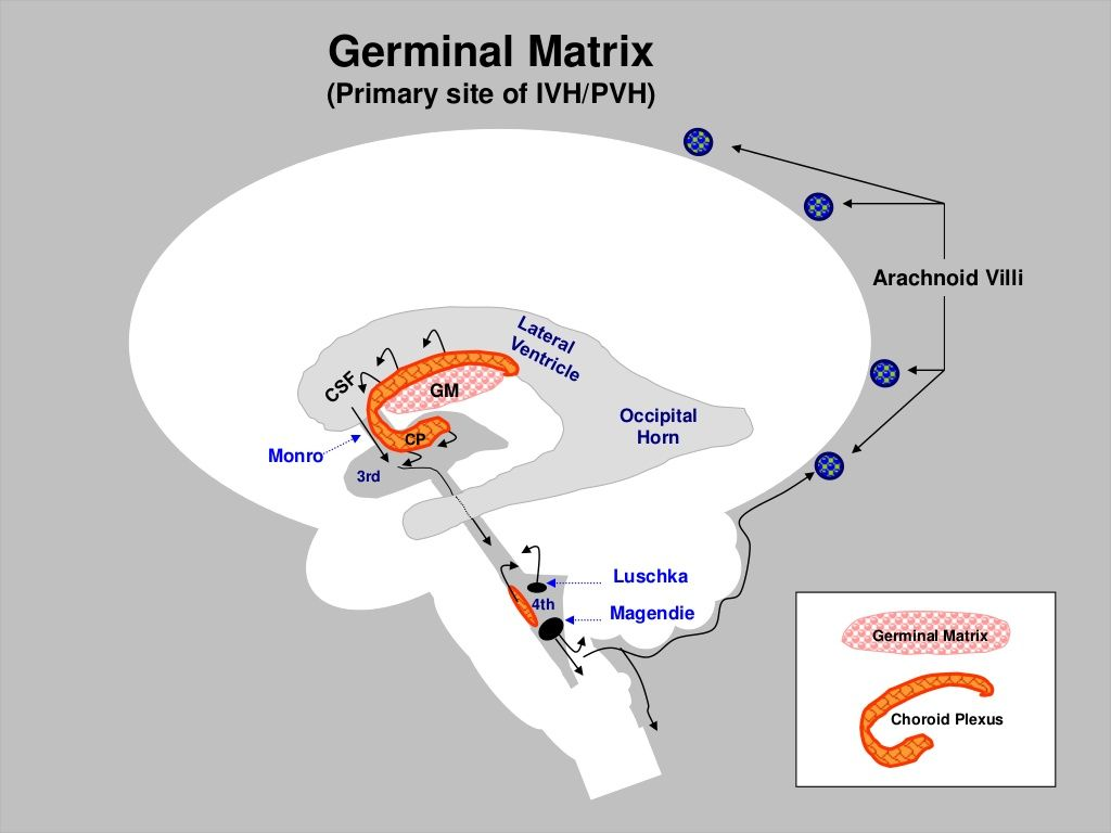 Germinal Matrix | Neuroradiology | Pinterest | Brain injury, Nicu ...