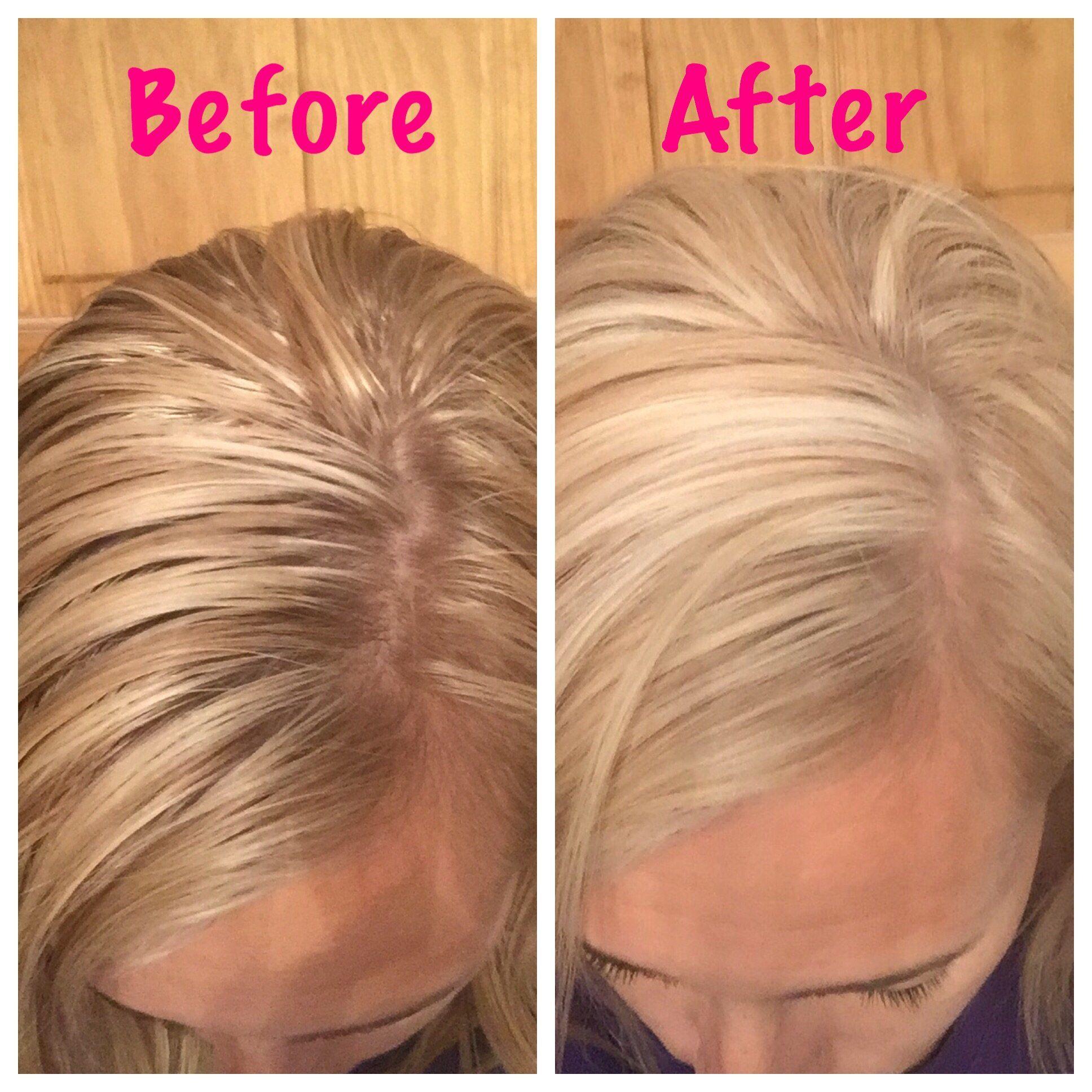 Dry Shampoo Shaker Organic Light Or Dark Hair Diy Hair Toner Dark Dry Shampoo Blonde Roots