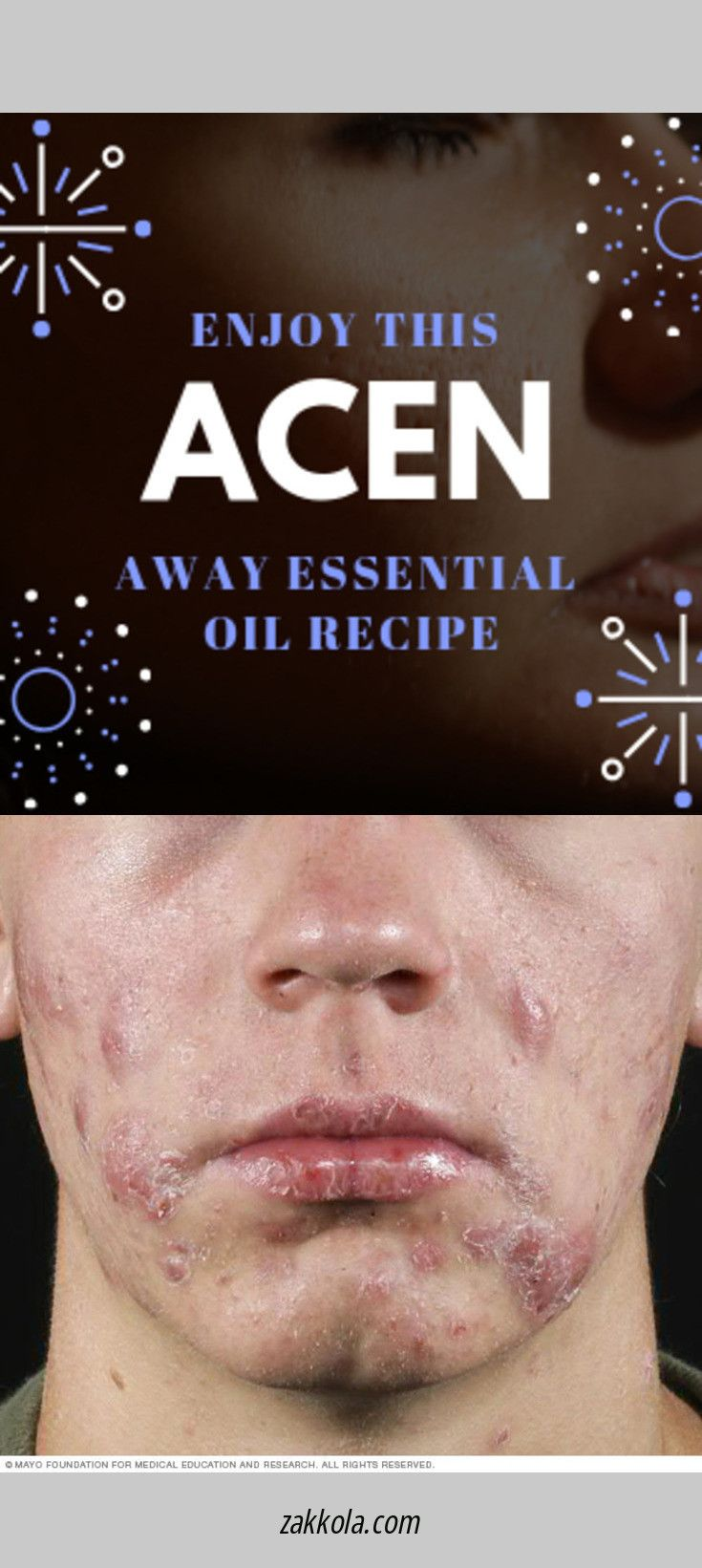 Read more about acne. Simply click here to get more information