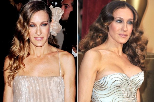 Celebrity Before and After Photos - Plastic Surgery People
