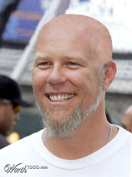 james hetfield bald