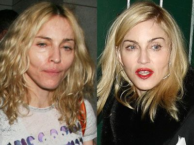 Top 10 Celebrity Plastic Surgeries Gone Wrong - YouTube