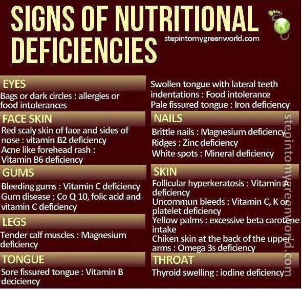 Pin By Leah Blecker On Health Nutritional Deficiencies Nutrition Zinc Deficiency