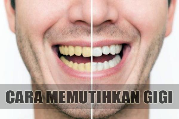 Cara Memutihkan Gigi Secara Alami Dengan Benar Bisikan Sehat