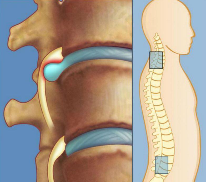 """Vārdu salikumu """"starpskriemeļu bruka"""" mūsdienās dzirdam bieži. Lai izprastu tā nozīmi, jāpievēršas anatomijai. Starpskriemeļu diski ir sava veida blīves starp skriemeļiem. No tiem atkarīgs mugurkaula kustīgums, lokanība un izturība. Cietais apvalks (fibrozais gredzens) un pusšķidrais pulpozais ko"""