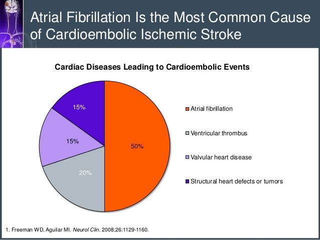 atrial fibrillation is the most common cause of cardioembolic, Sphenoid