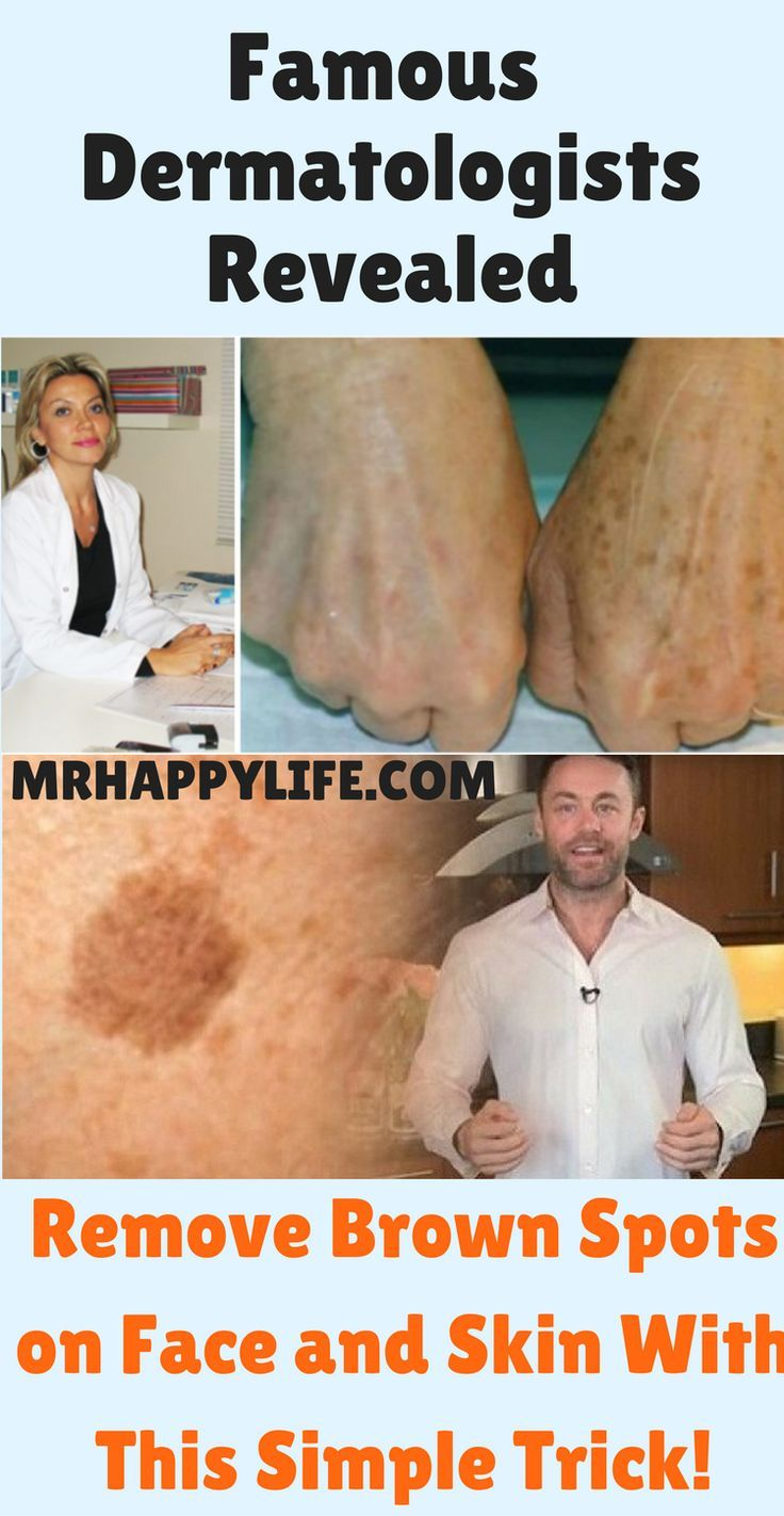 Age spots or brown spots on the skin which are not scary nor represents…