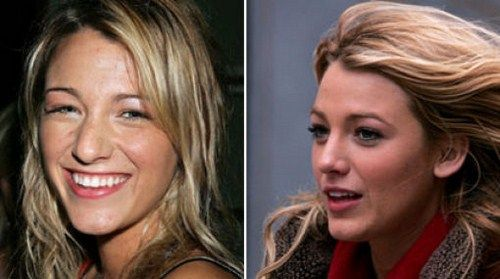 Similar famous people before and after surgery consider