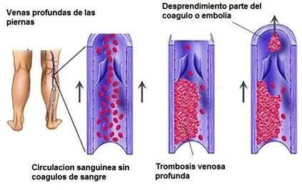 Pierna trombosis venas profundas