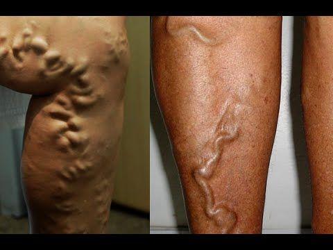 a má circulação causa dor muscular