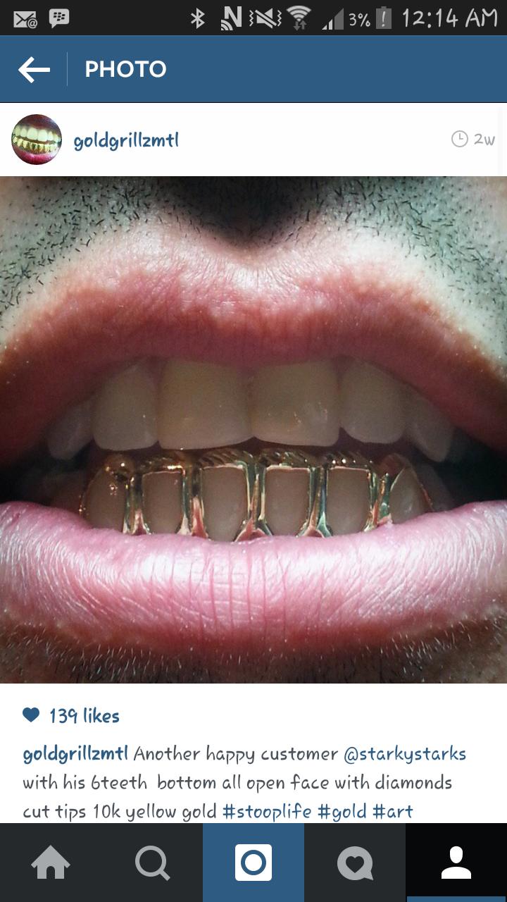 Open Face Gold Tooth Cap | www.pixshark.com - Images ...