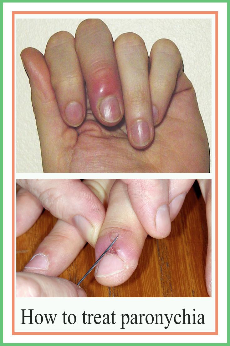 How To Treat Paronychia An Infected Nail Ingrown Toe Nail Finger Infection Toe Nails