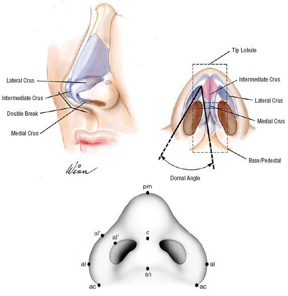 Nose Anatomy - This is modified in a nose job / rhinoplasty ...