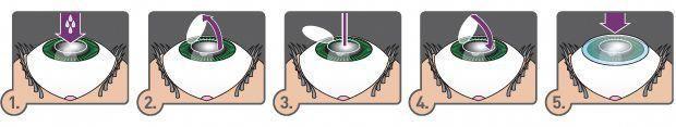 nagel schlicht #nails #nagel Funktioniert die Lasernagelpilzbehandlung #PilzbehandlungWhrend der Schwanger... - Nageldesigns -