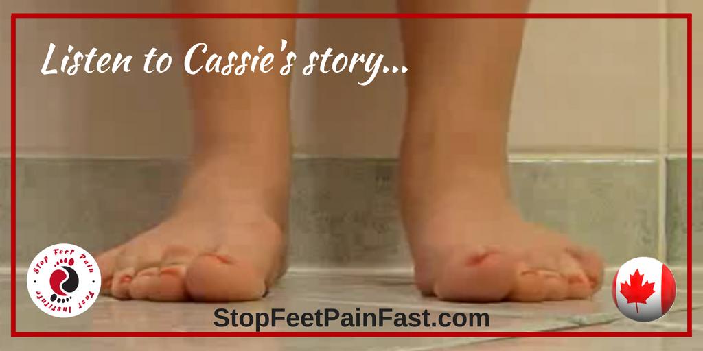 15+ Can flat feet be corrected trends
