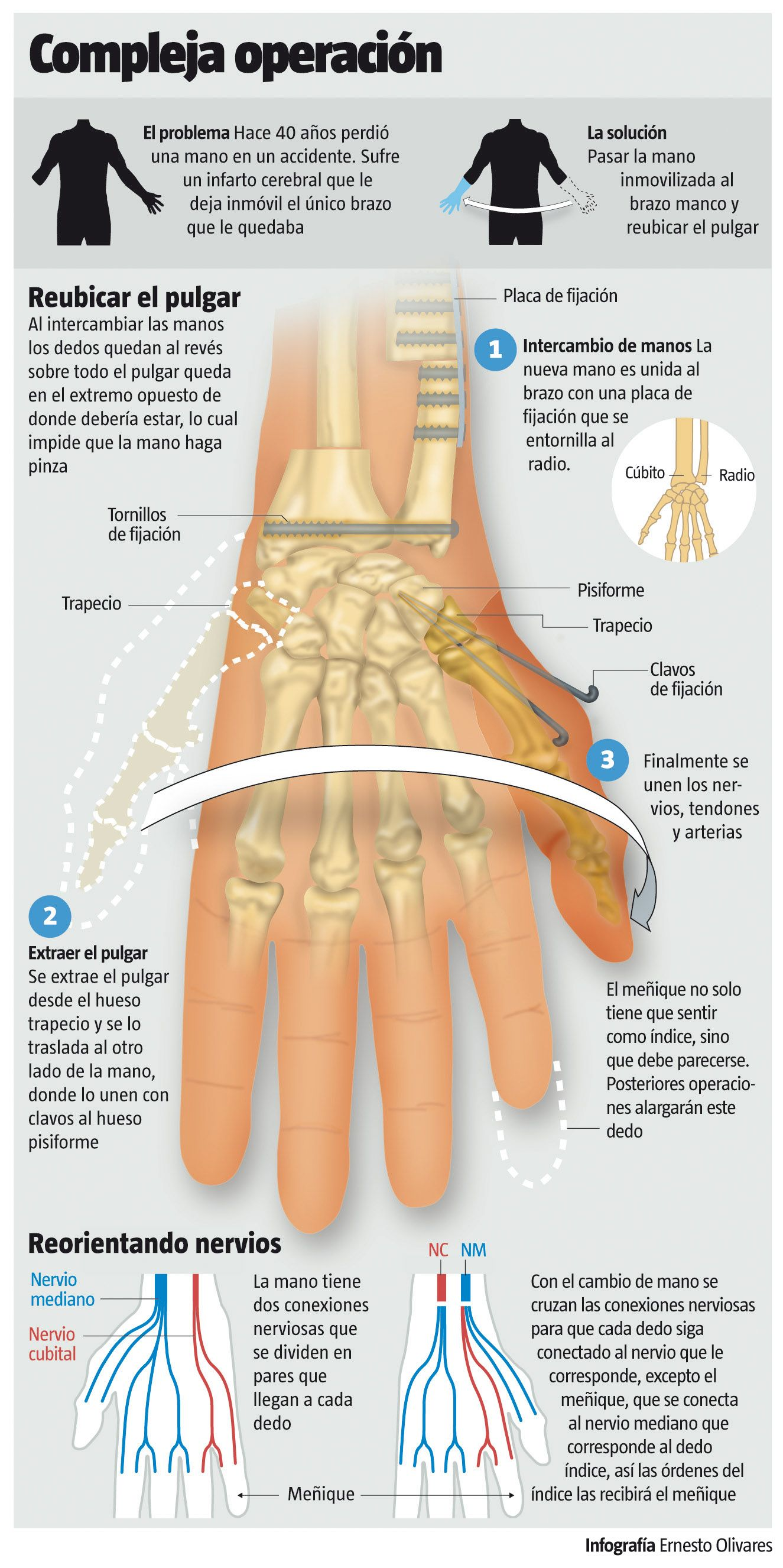 Complex Surgery: A Hand Transplant (espanol) I need to learn ...