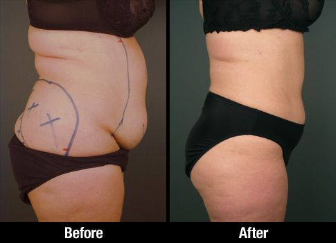 Abdominal Liposuction Before Amp After Photo Of Female
