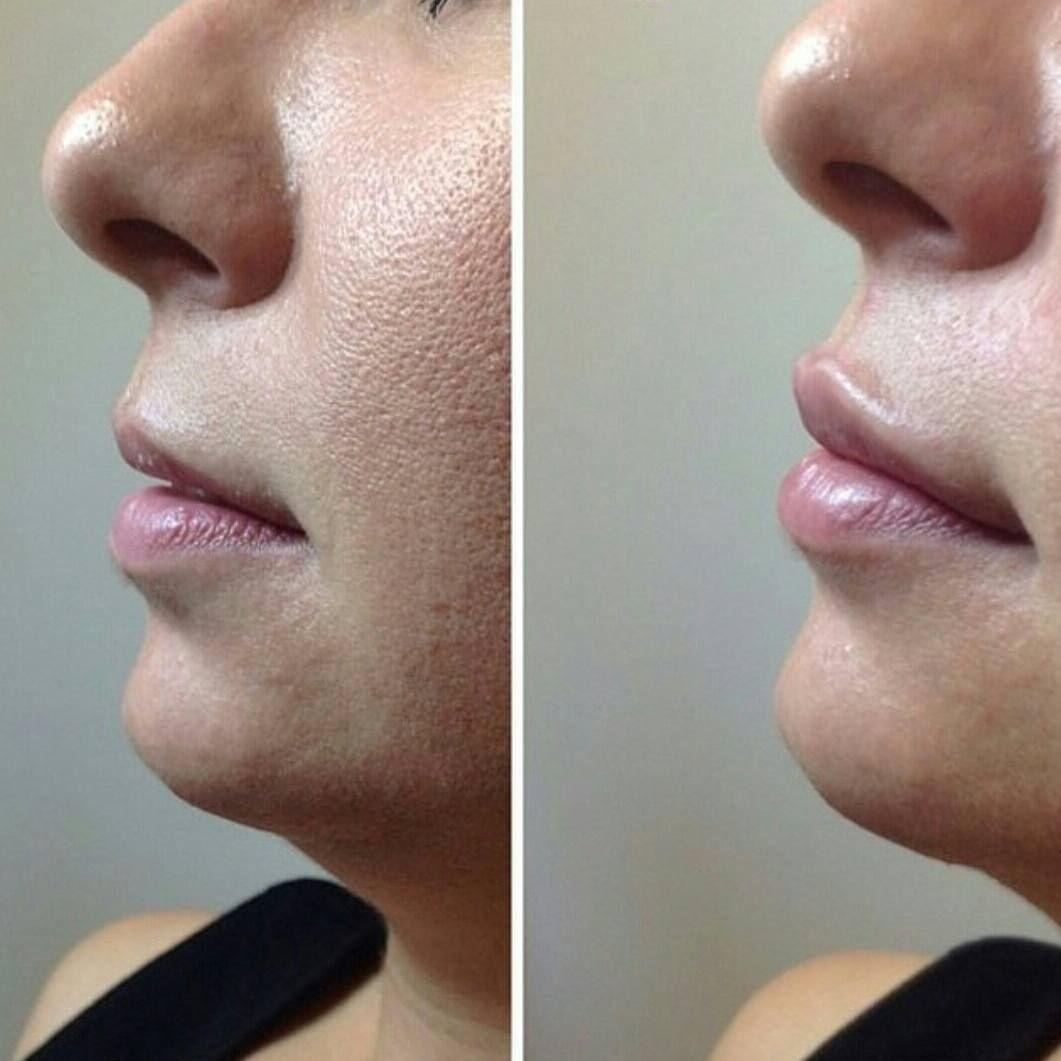زراعة شعر وتجميل في اسطنبول On Instagram Let Your Lips Talk حقن الشفاه نفخ الشفايف الكويت السعودية Nose Ring Nose