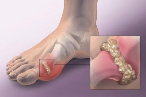 Таблетки от артрита и артроза суставов: 8 лучших препаратов