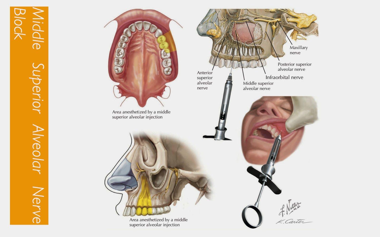 NP dental injection - Google Search | Dental Hygiene | Pinterest