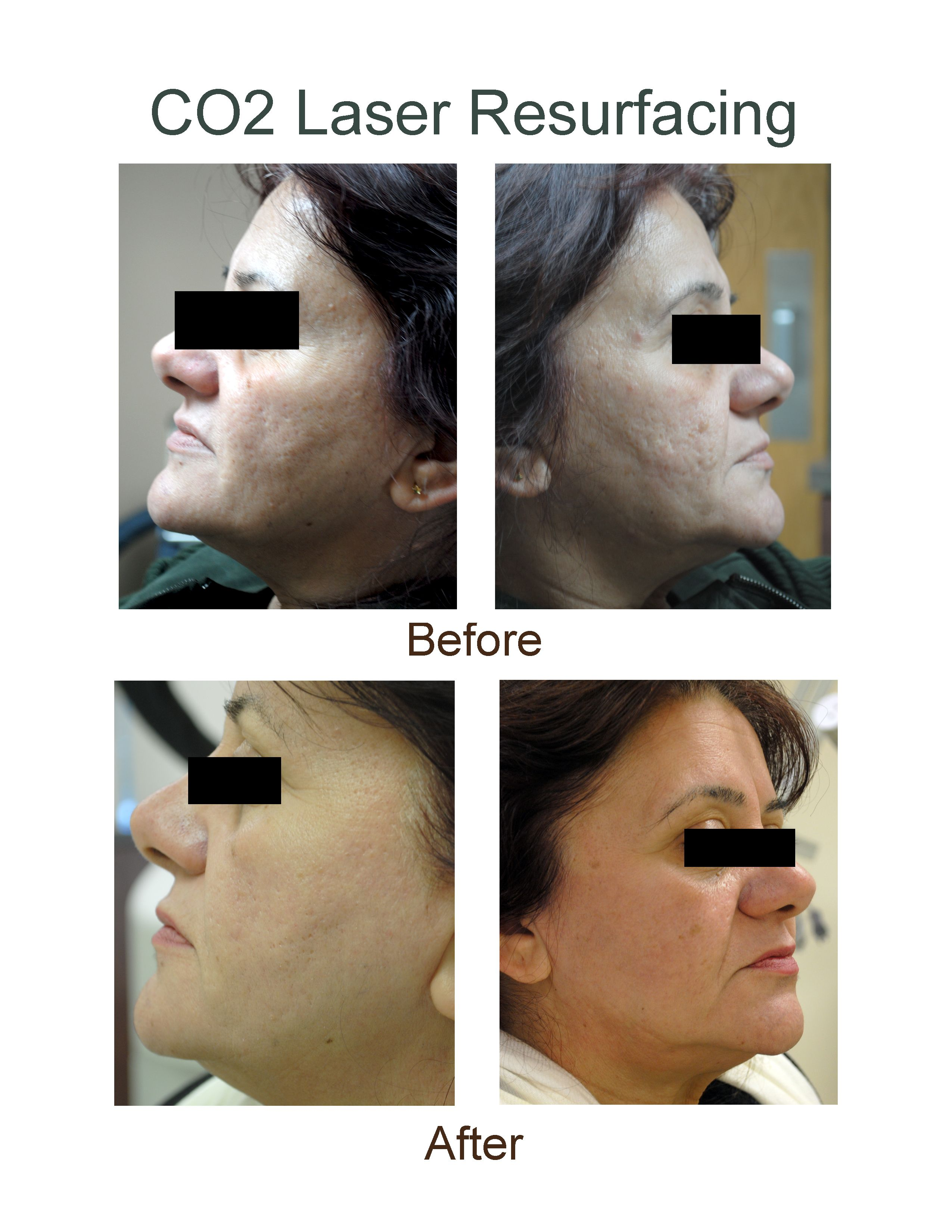 Before and After CO2 Laser Resurfacing at AH Laser