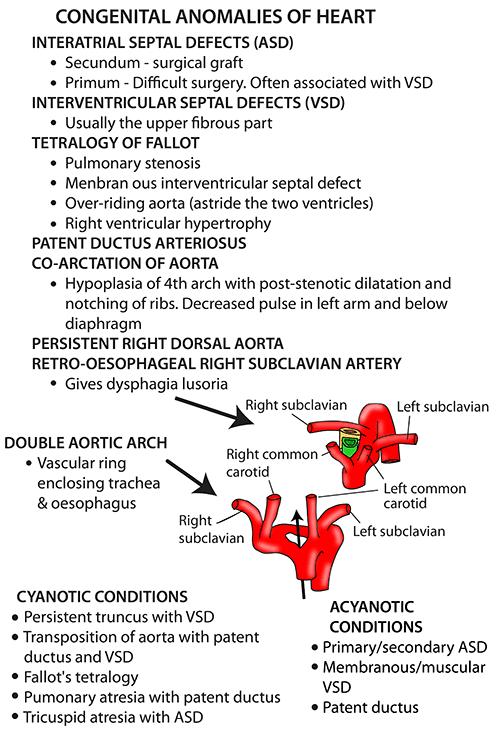 Instant Anatomy - Thorax - Areas/Organs - Heart - Congenital ...