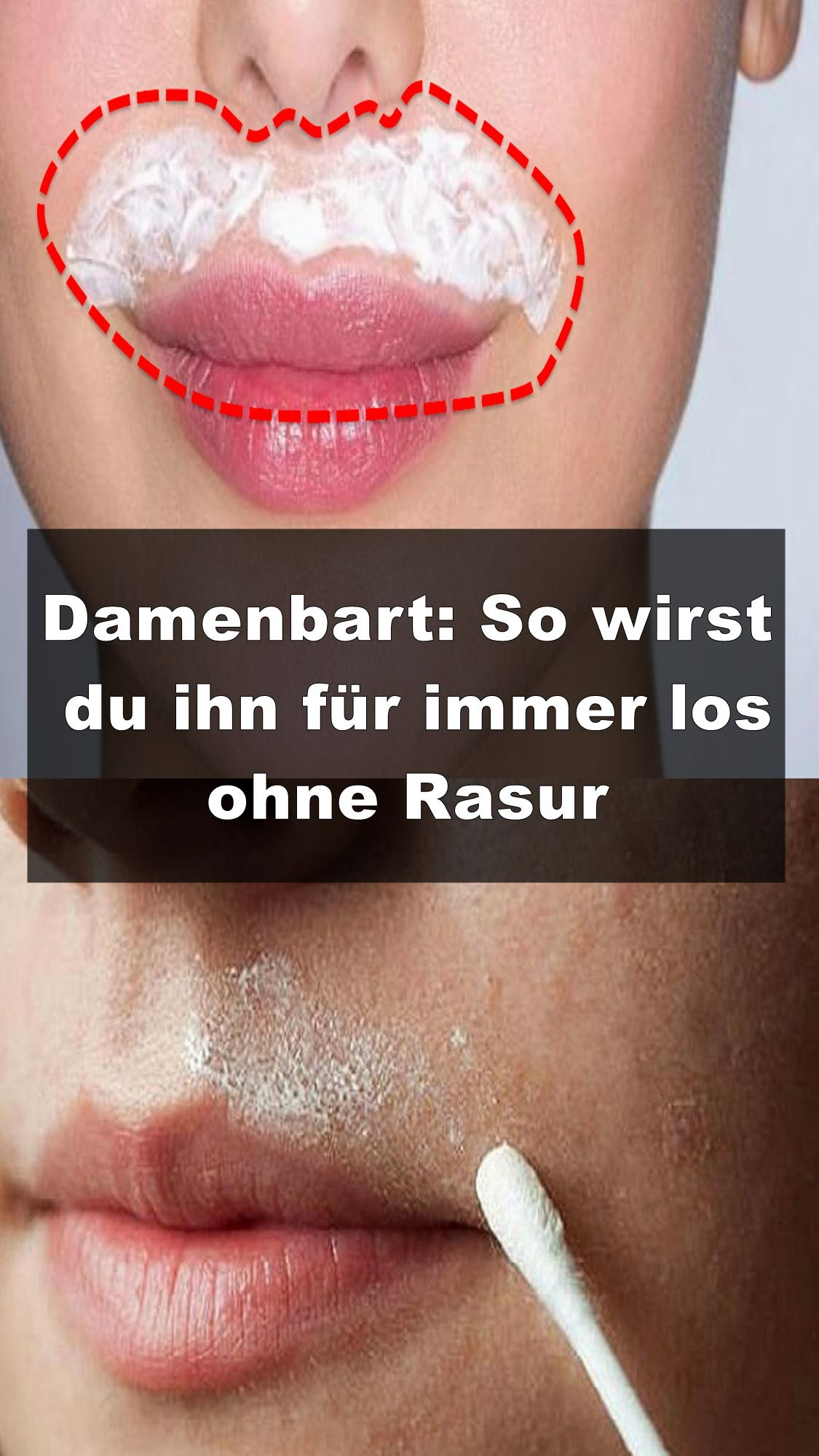 Damenbart So Wirst Du Ihn Für Immer Los Ohne Rasur Beauty Hacks That Actually Work Health And Beauty Beauty Skin