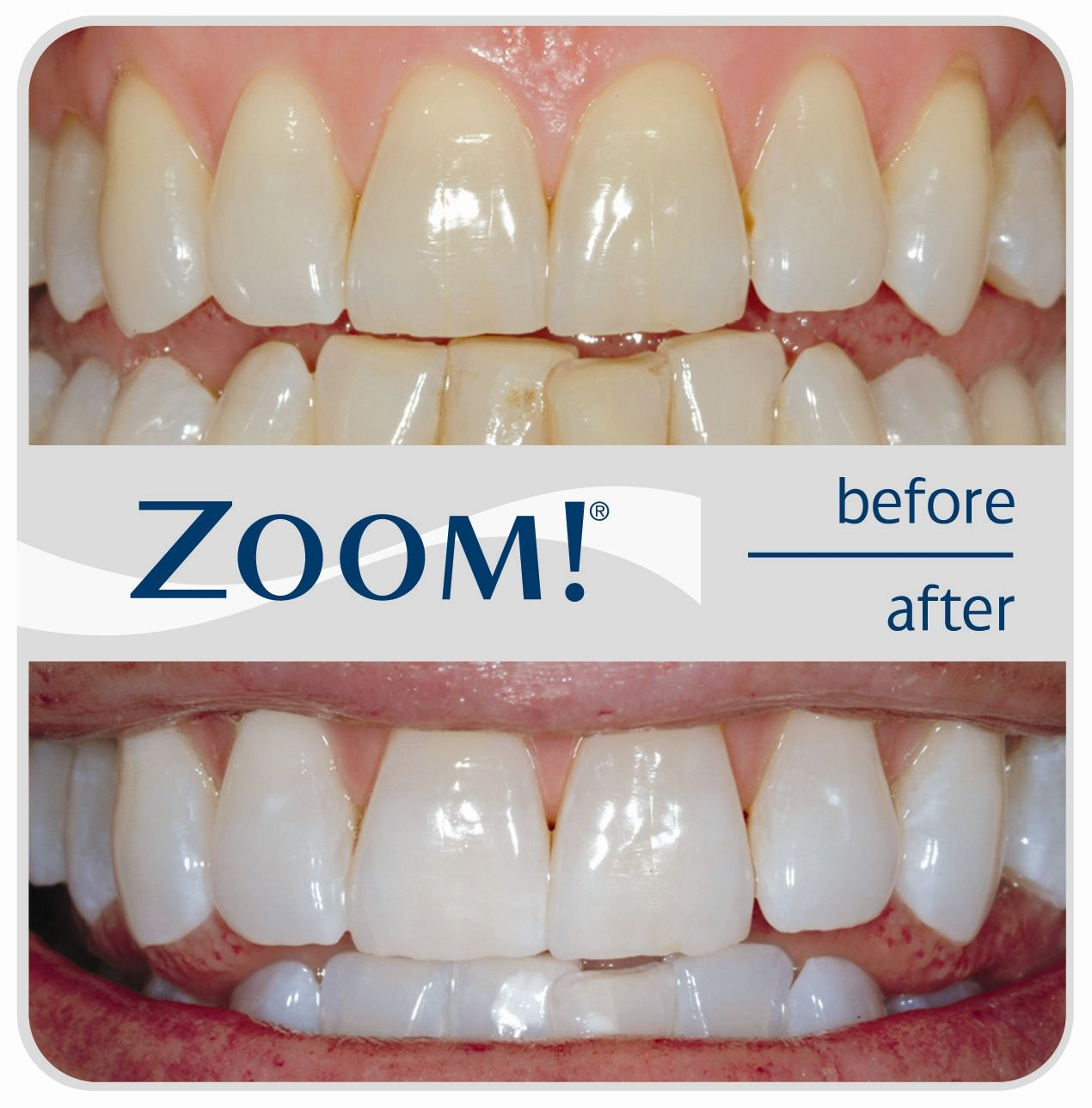 Colgate teeth whitening teeth whitening products pinterest teeth - Whiten Your Teeth By Zoom Teeth Whitening Smile Happily