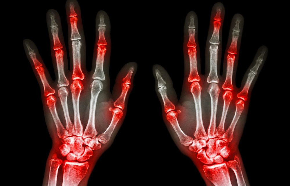 Arthrose, Arthrite, Rhumatismes, Douleurs articulaires, vous n'êtes ...