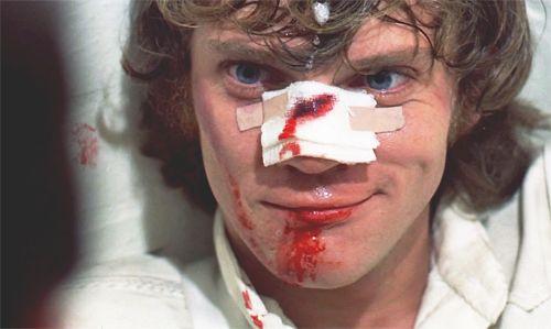 Malcolm McDowell, Arancia meccanica