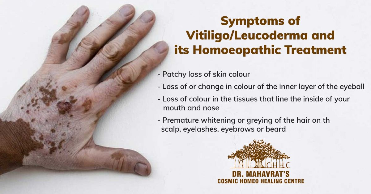 Homoeopathy for vitiligo/leucoderma aims to control the spread of vitiligo by modulating the immune…