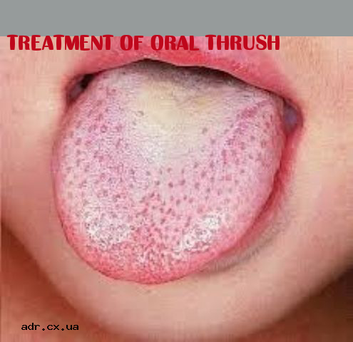 Treatment of oral yeast infection 4