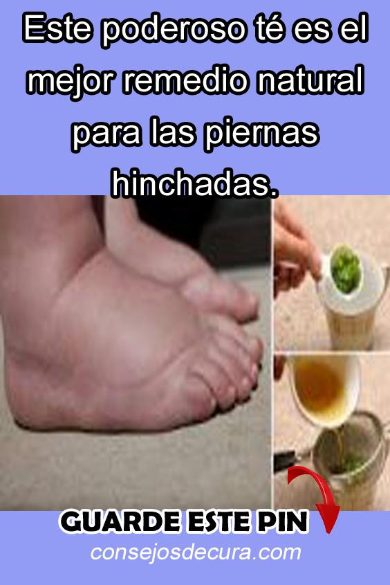 remedios caseros para pies y piernas hinchadas